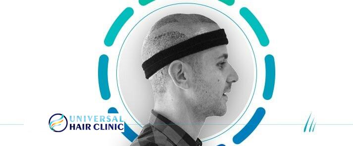 Pain Free Hair Transplant